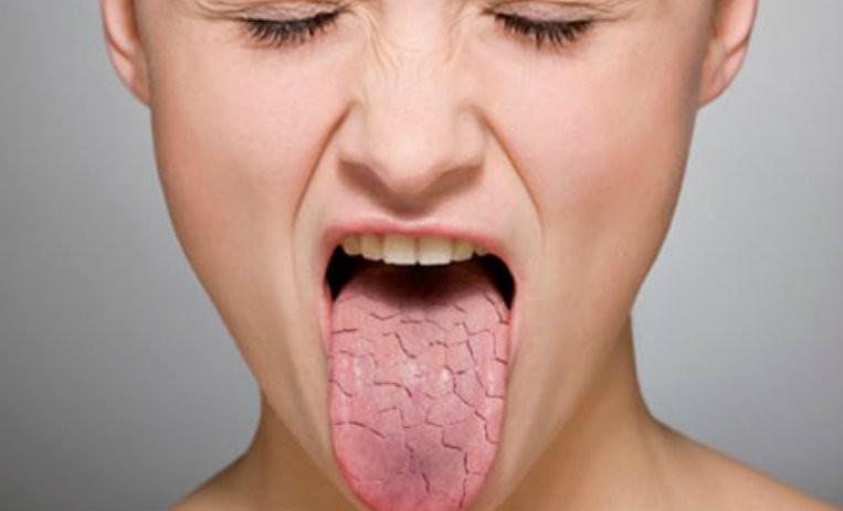Почему во время сна пересыхает во рту
